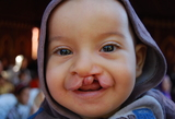 Missione Operation Smile