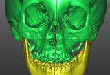 III classe scheletrica - cefalometria 3D attuale