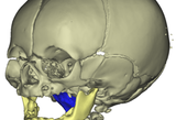 3D Elaboration of skull, jaw and airways in a patient with Pierre Robin Sequence