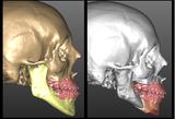 Chirurgia ortognatica