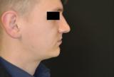 III classe scheletrica - ipotrofia mascellare e ipertrofia mandibolare